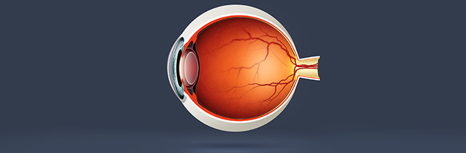 Age-Reltaed Macular Degeneration Explained