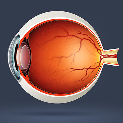 Age-Related Macular Degeneration: Understanding Your Condition