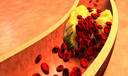 What Is Cholesterol? Getting to Grips with Heart Health
