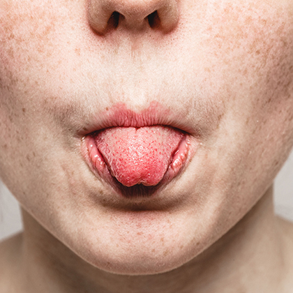 Burning Mouth Syndrome Causes and Treatments