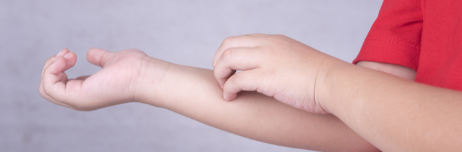 Skin Conditions in Children: How to Soothe Your Child's Skin