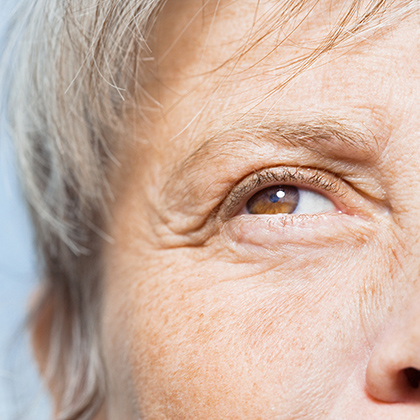Preventing Cataracts: Practical Steps to Maintain Eye Health