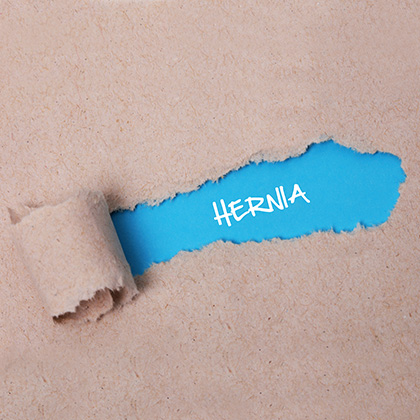 What is a Hernia? The Symptoms and Treatments Explained