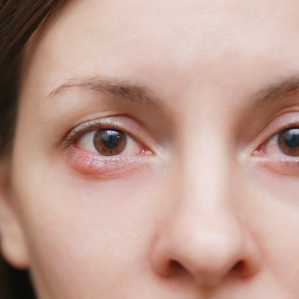 What Is a Stye and How Do I Treat One